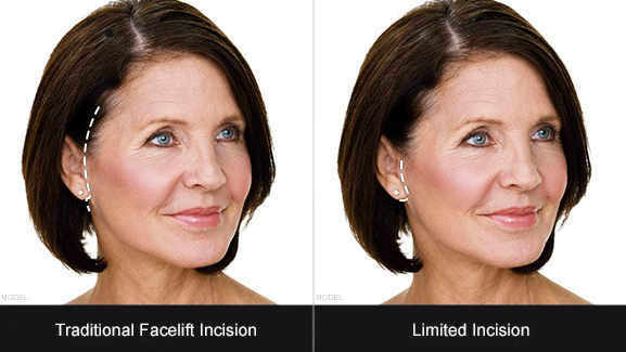 Facelift Incision Diagram